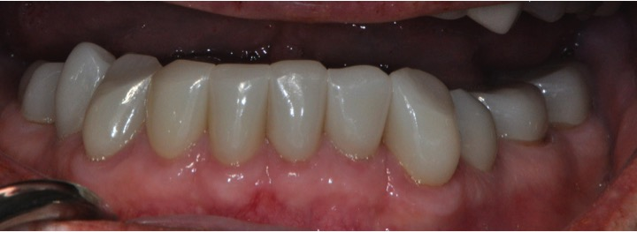 Clinial Crown Lengthening After 1