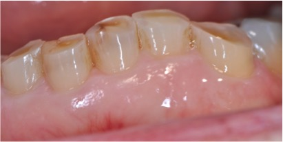 Clinical Crown Lengthening Before 1