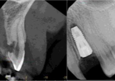 Immediate Implant Anterior