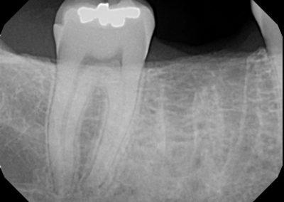 Implant Before 1b