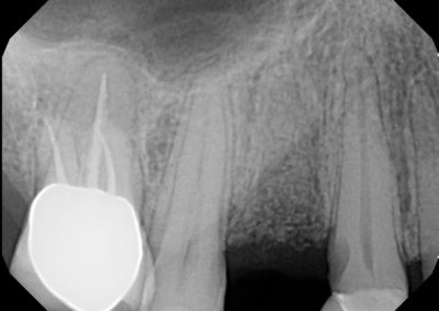 Implant Before 2