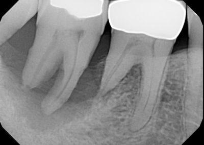 Implants Before 5