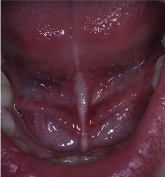Lingual Frenectomy After 2