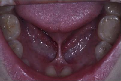 Lingual Frenectomy Before 2