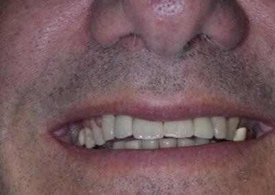 Implants After 1d
